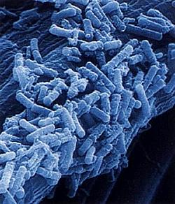 Bacillus stearothermophilus